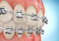 Услуги стоматологов-ортодонтов